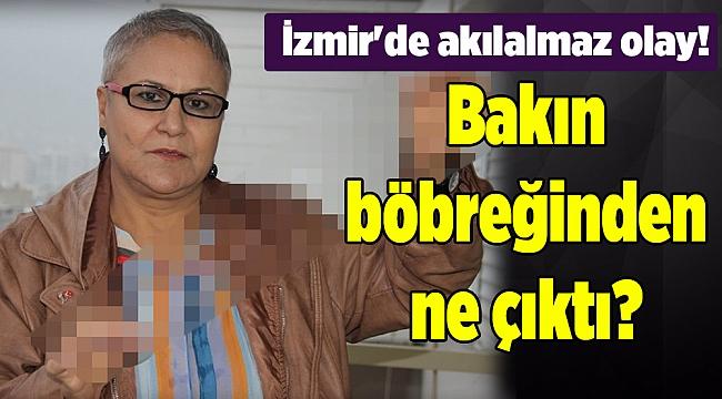 İzmir'de akılalmaz olay! Bakın böbreğinden ne çıktı?