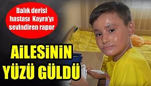 Balık derisi hastası Kayra'yı sevindiren rapor